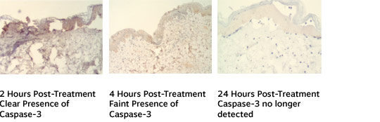 Between 2 and 4 hours, Caspase-3 immunohistochemistry marker confirms Programmed Cell Death (PCD)